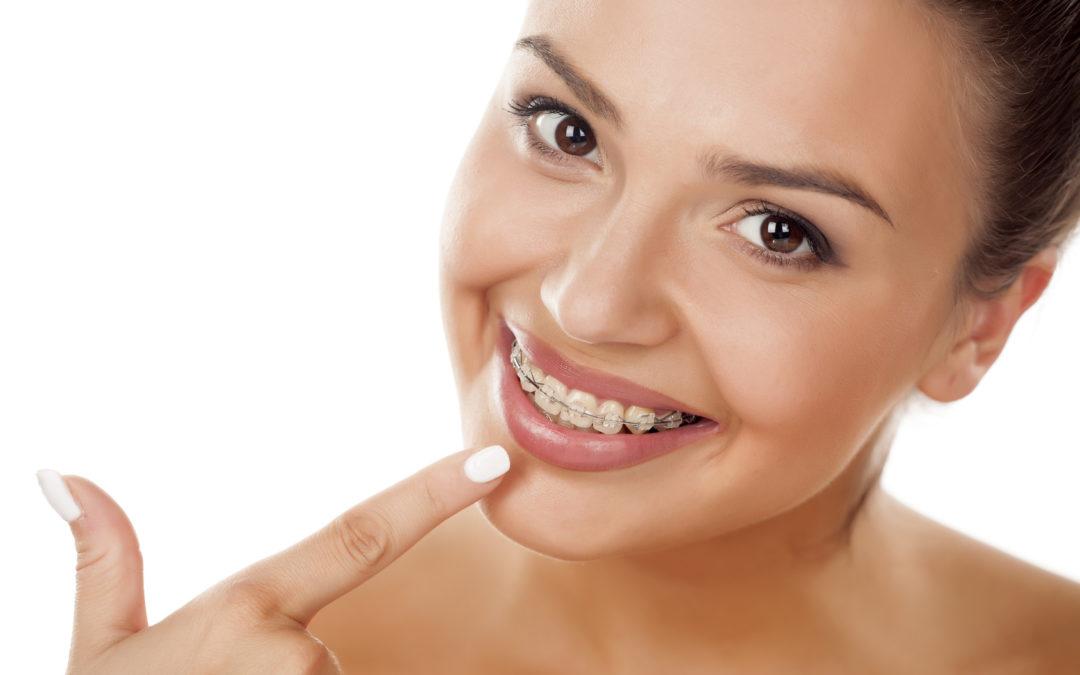 Apparecchio ortodontico fisso: una o due arcate?