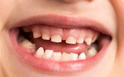 I denti da latte cariati vanno curati?